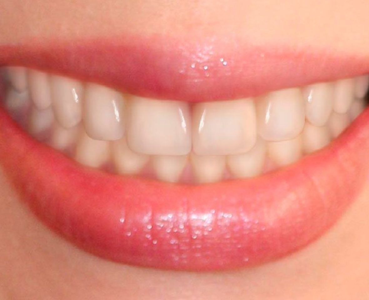 Ortodoncia estética brackets cerámicos - después del tratamiento