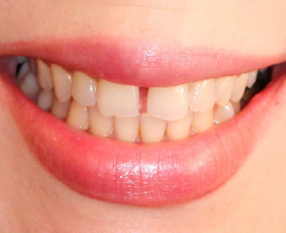 Ortodoncia estética brackets cerámicos - antes del tratamiento
