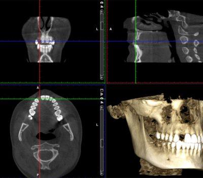 Radiografías dentales 3D Clínica Ortodoncia Pedro Vázquez