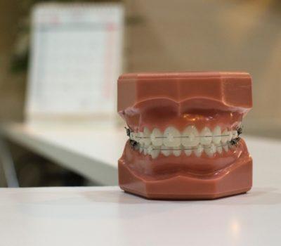 Ortodoncia Estética Clínica Ortodoncia Pedro Vázquez