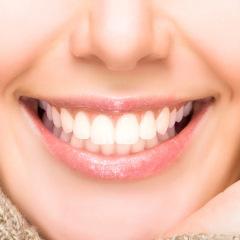 Volver a sonreír